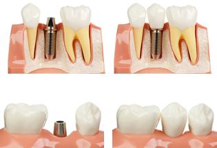 dental_impants