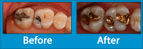 Gold Fillings - Before-After