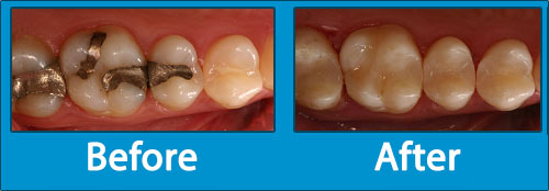 White Composite Fillings - Before-After